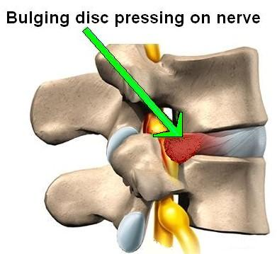 My Method For Proving Disk Back Pain Caused By Car ...